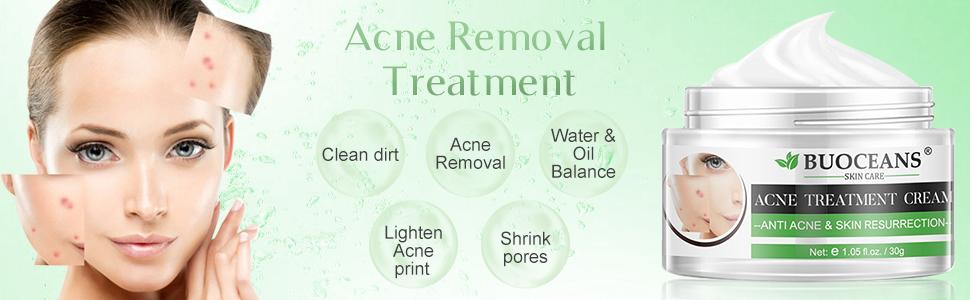 Amazon Com Acne Treatment Acne Removal Cream Pimple Treatment