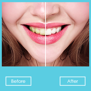 Amazon Com Teeth Whitening Pen 20 Uses Effective Painless