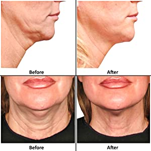 silicone neck wrinkle pad