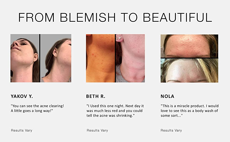 From Blemish to Beautiful
