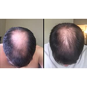 Hair loss growth regrowth dht blocker block thin thinning stimulate viviscal propidren