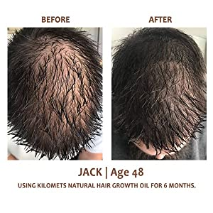 hair growth oil for baldness hairloss before and after