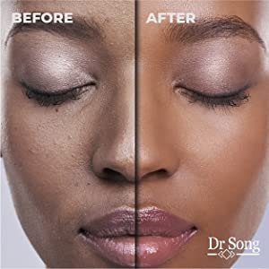 dr song, dr song glycolic acid face wash, dr song glycolic acid, glycolic acid face wash, face wash