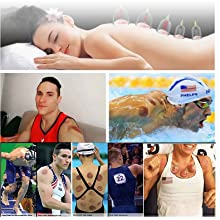 Cupping Therapy is an Ancient Chinese method of Massage for comfort