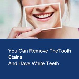 Sbiancante Denti Led e Gel Sbiancante Denti