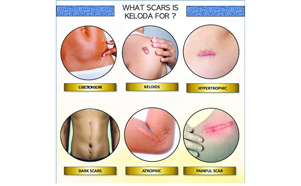 keloid kelois scar scars piercing c-section hypertrophic atrophic itching irritated painful dark