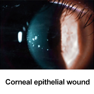 Corneal epithelial wound