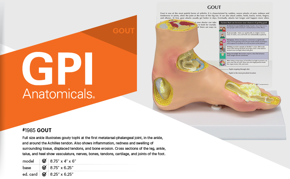 Foot Model Human Body Anatomy Replica Of Foot W Gout For Doctors Office Educational Tool Gpi Anatomicals Amazon Com Industrial Scientific