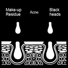 Blackhead Remover Vacuum A6