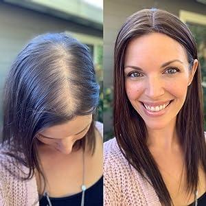 hair topper,human hair topper,top hair pieces,hair loss,thinning hair,alopecia