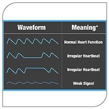 Homesoul Finger Tip Pulse Oximeter Oxygard Digital LED Heart Rate Monitor Oximeter YM201 - SPN-FOR1