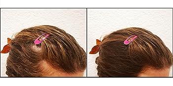 KERAFLOW - Polvo de cobertura contra el pelo claro, polvo de raíz contra zonas calvas, polvo para ocultar la línea del cabello, polvo para el cabello ...
