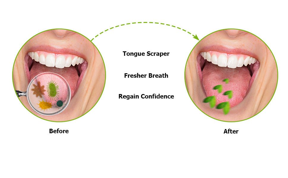 tongue cleaner