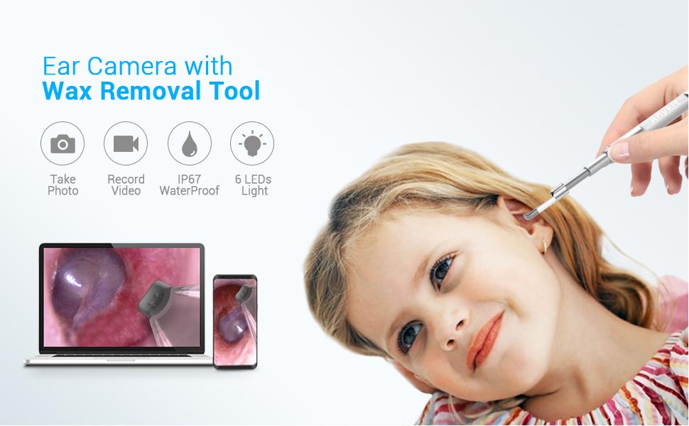 video otoscope