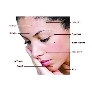 wrinkles fillerina fillers botox skin anti-ageing plumpers face neck lines serum tightening moisture