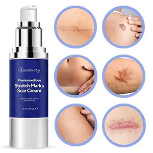 scar remover cream