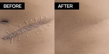 Scar Removal Gel