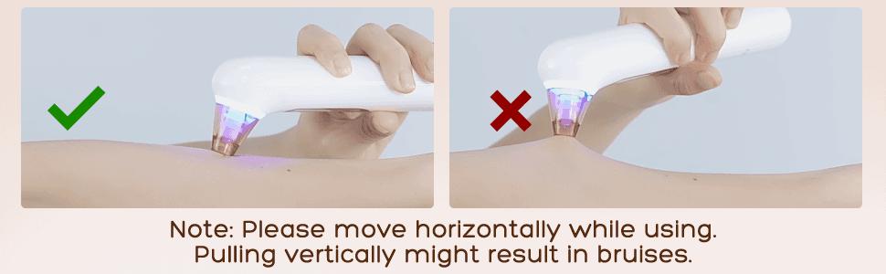 Correct way to remove blackheads