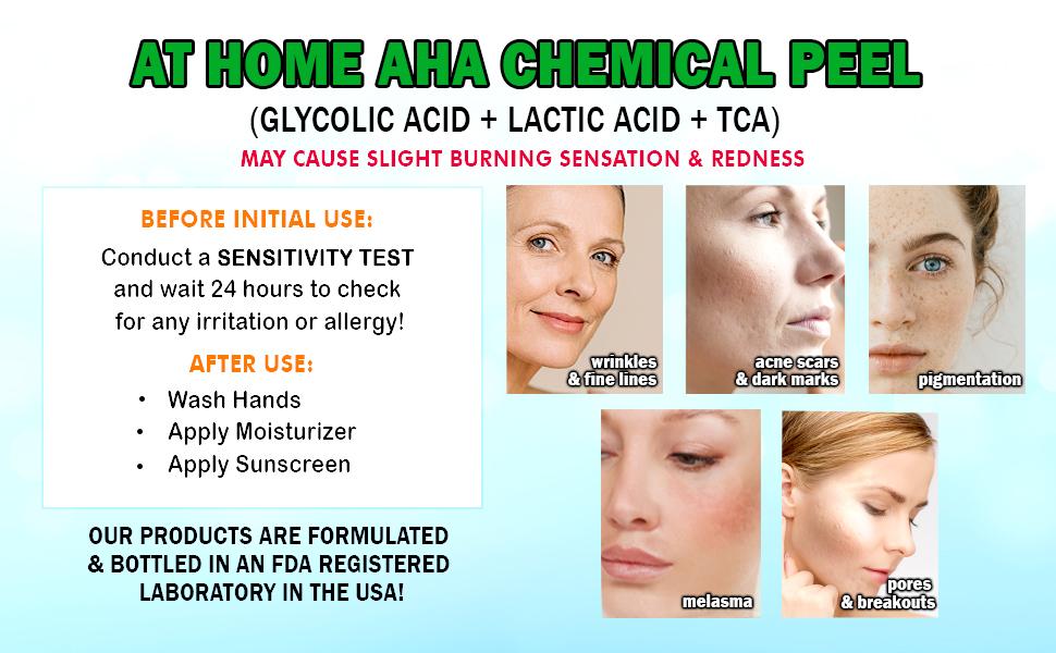Ebanel Chemical Peel 30 Gel Form Glycolic Acid Peel Plus Lactic Acid Tca Face Peel With Hyaluronic Acid Vitamin C Acne Treatment Aha Skin Peel