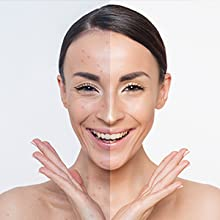 Help with Acne and Acne Scarring: