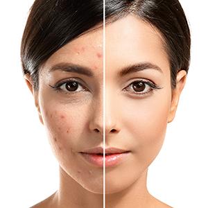 acne scar serum acne marks rosehip oil face roseship seed oil reduce acne scar reduce acne scars