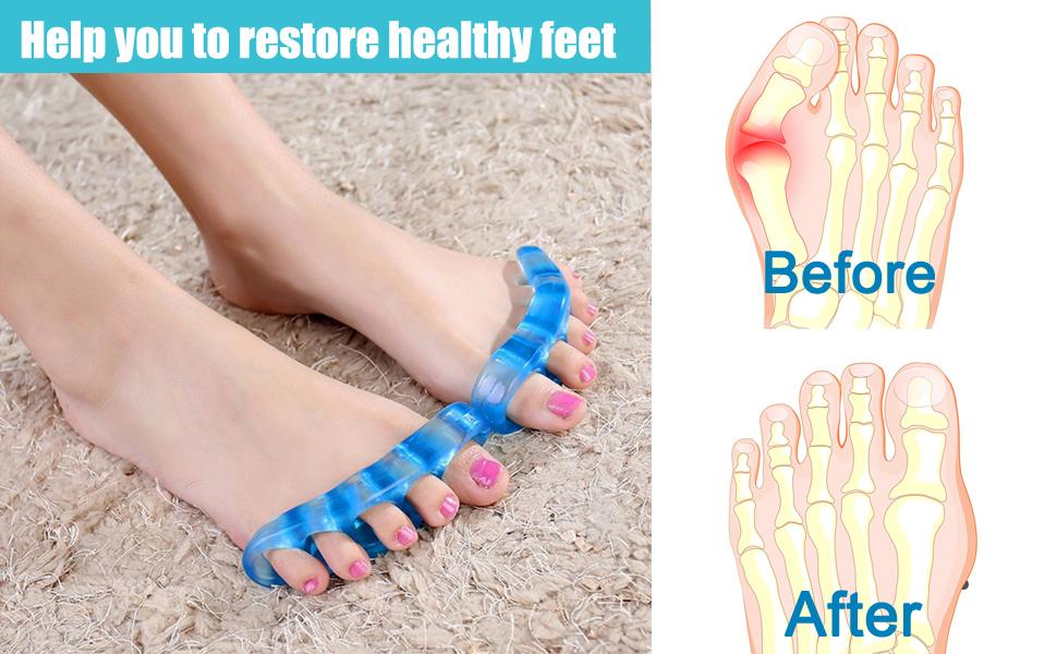help restore healthy feet