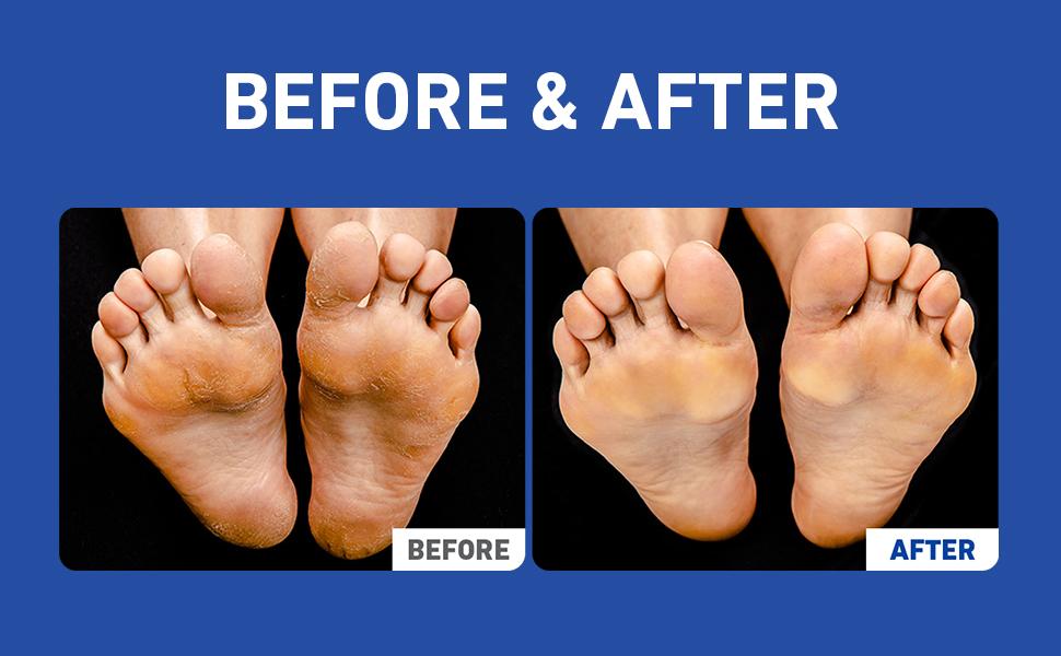 foot filer