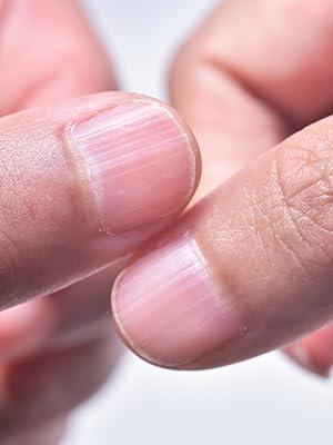 Thin Nails
