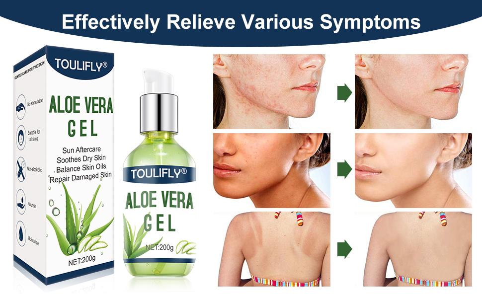 Aloe Vera Gel,After Sun Aloe Vera Gel,Soothing Gel,Gel Moisturizer,Aloe Vera Soothing Gel
