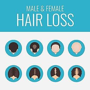 Hair Loss in male & female