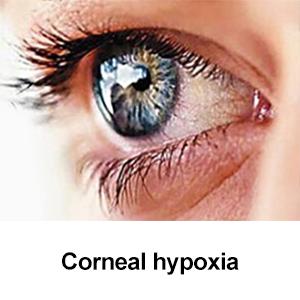 Corneal hypoxia
