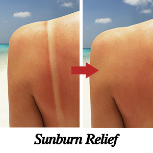 aloe vera gel for sunburn relief