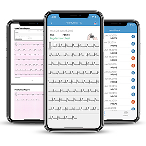 Free Heartcheck Report on APP