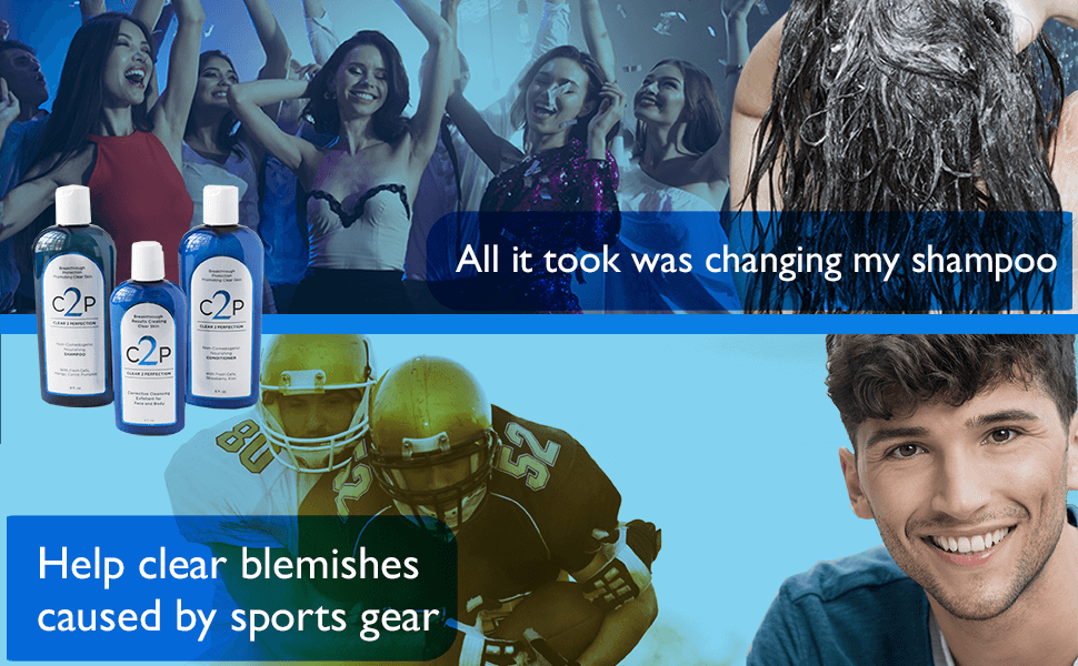 All it took was changing my shampoo