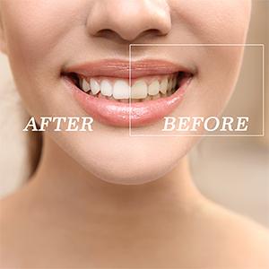 teeth whitener
