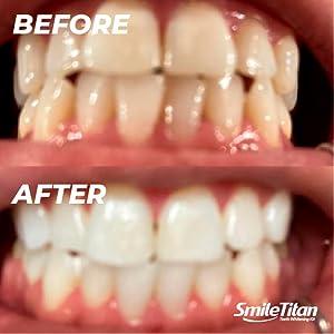 Amazon Com Smile Titan Teeth Whitening Kit Teeth Whitening Gel