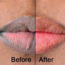 Lips Lightening