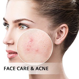 lavender oil for skin and face care,  redness, pimples and acne, breakouts, boils, spots, scars
