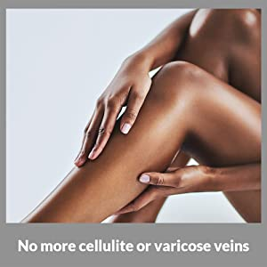 NO MORE CELLULITE OR VARICOSE VEINS