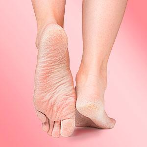 pėdų lupimasis