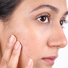 ayurvedic cream for pimples and dark spots