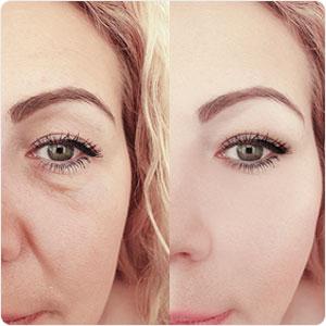 Rapid Reduction Eye Cream