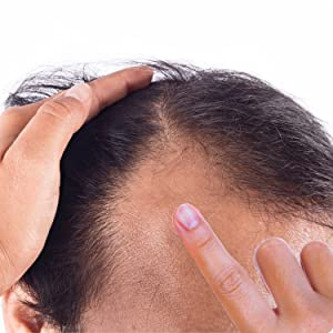Apply Hair Growth Serum