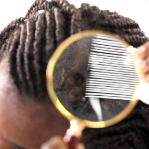 Human Hair with Dandruff Flakes