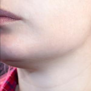 jomo serum acne