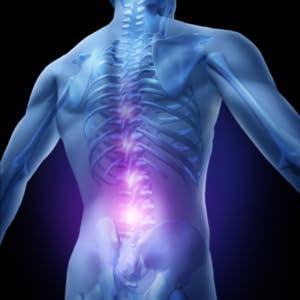 Sciatica Nerve Pain