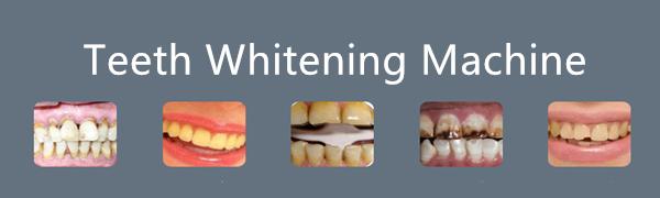 teeth whiten machine
