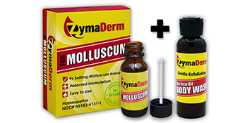 ZymaDerm for Molluscum and Body Wash