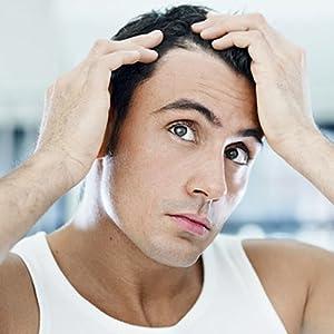 Alopecia Prevention and DHT Blocker