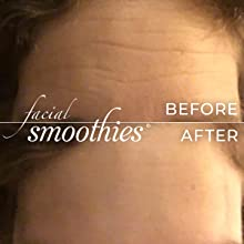 wrinkle remover, wrinkle patches, forehead wrinkles, anti-wrinkle, forehead, botox alternative
